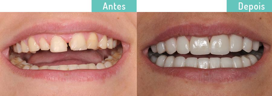 Gabi_trat_reabilitadores_contrua_dentaria